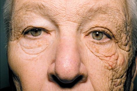 efectos sol en tu piel